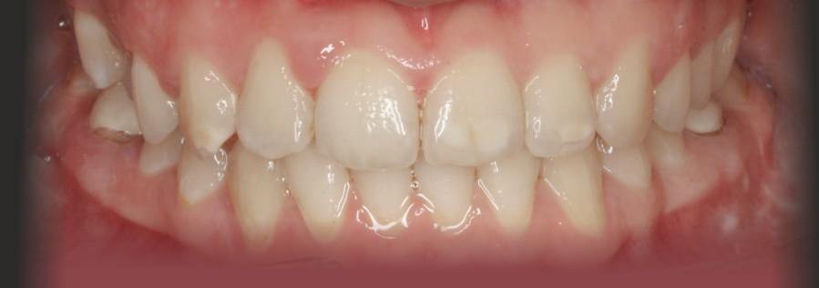 Kieferorthopäde in Kirchheim: Zahnkorrektur